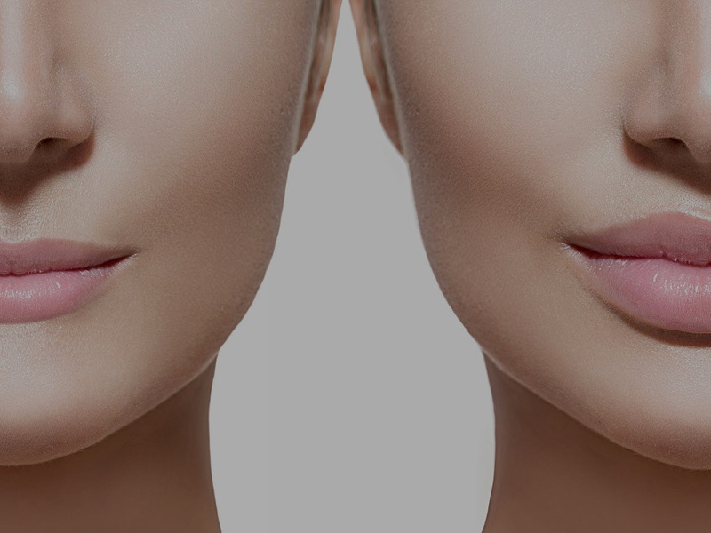 Эффект от проведения процедуры для увеличения и изменения формы губ
