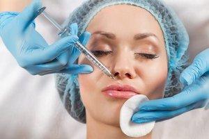 Способы увеличения объёма губ инъекциями гиалуроновой кислоты