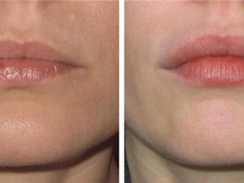 Сушит губы после увеличения