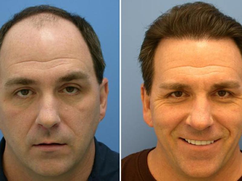 Пересадка волос у мужчин фото