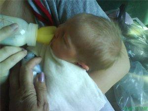 Кормление ребенка, у которого проявилась заячья губа.