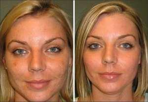 Какой косметикой пользоваться после мезотерапии