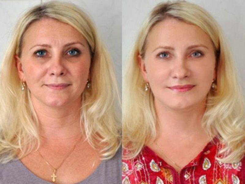 Процедура омоложения кожи лица