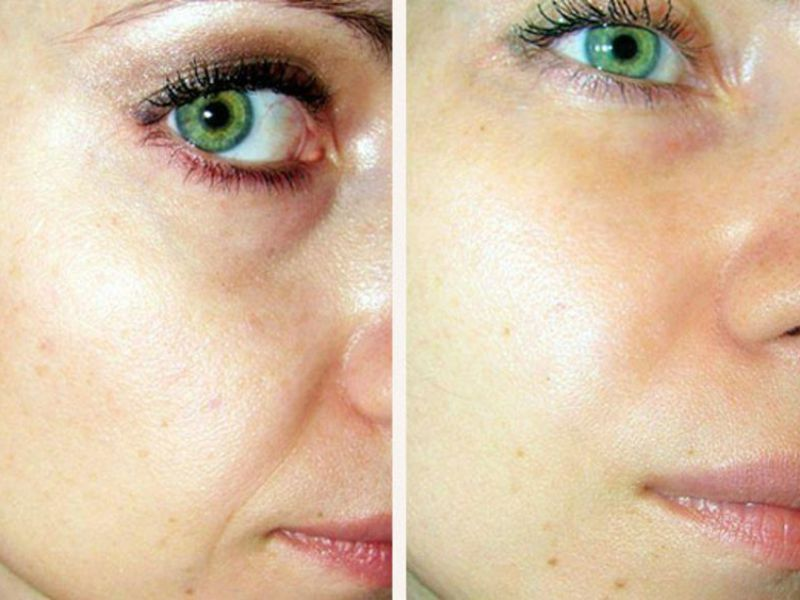 Воздействие мезотерапии на кожу