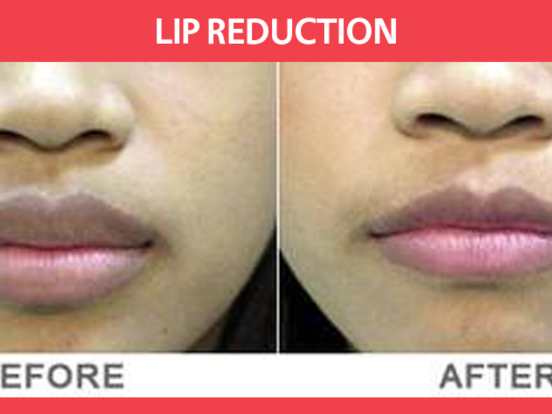 Хейлопластика губ до и после фото