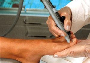 Вросший ноготь лечение лазером