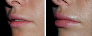 Фото до и после хейлопластики