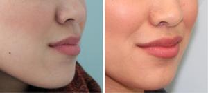 Подтяжка верхней губы: фото до и после