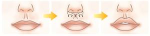 Схема коррекции губ Буллхорн