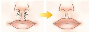 Схема коррекции губ Нитевые подвески