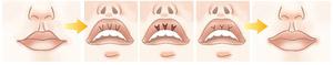 Схема коррекции губ пластика V-Y