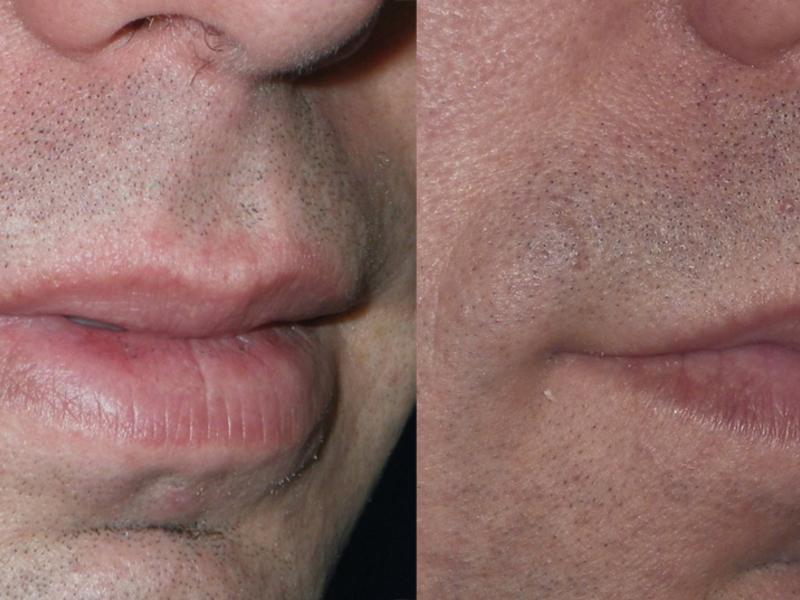 Хейлопластика до и после операции