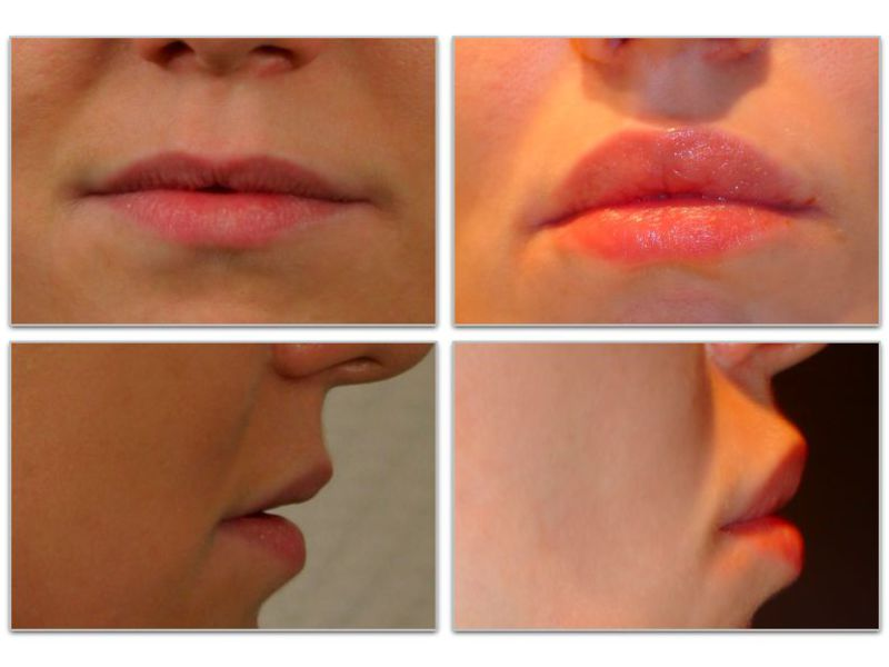 Хейлопластика: фото до и после