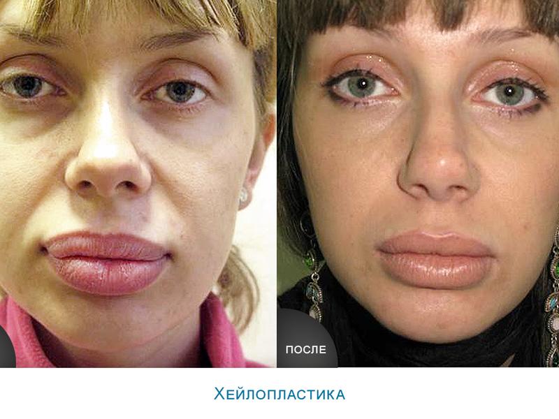 Хейлопластика до и после
