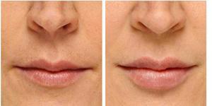 До и после инъекций ботокса вокруг губ и в уголки губ.