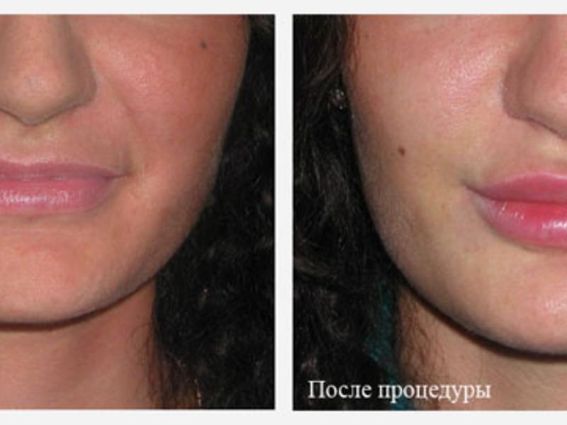 Укол ботокса в губы