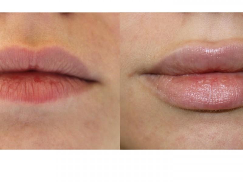 Проведение процедуры увеличения губ