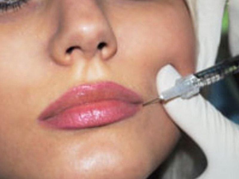 Как вводится ботокс в губы