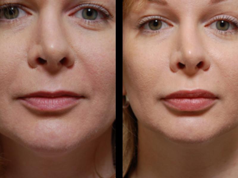 Увеличение губ ботоксом