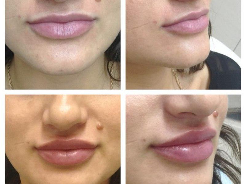 Как проводится процедура по увеличению губ