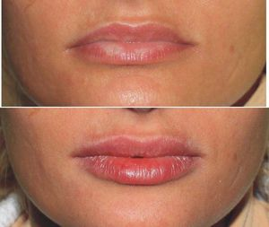 Побочные эффекты увеличения губ
