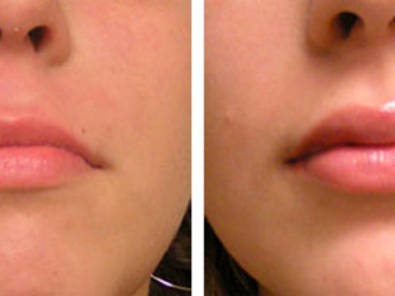 Описание процедуры увеличения губ