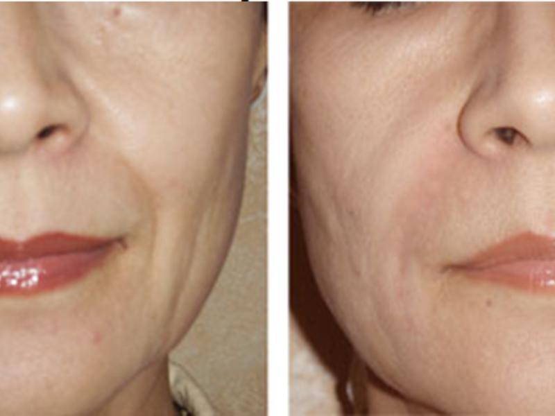 Увеличение формы губ