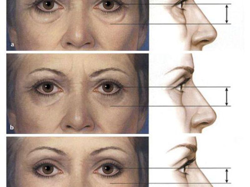Как избавиться без операции, от грыжи нижних век глаз - способы ...