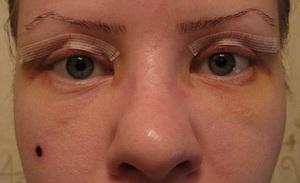 блефаропластика до и после операции фото