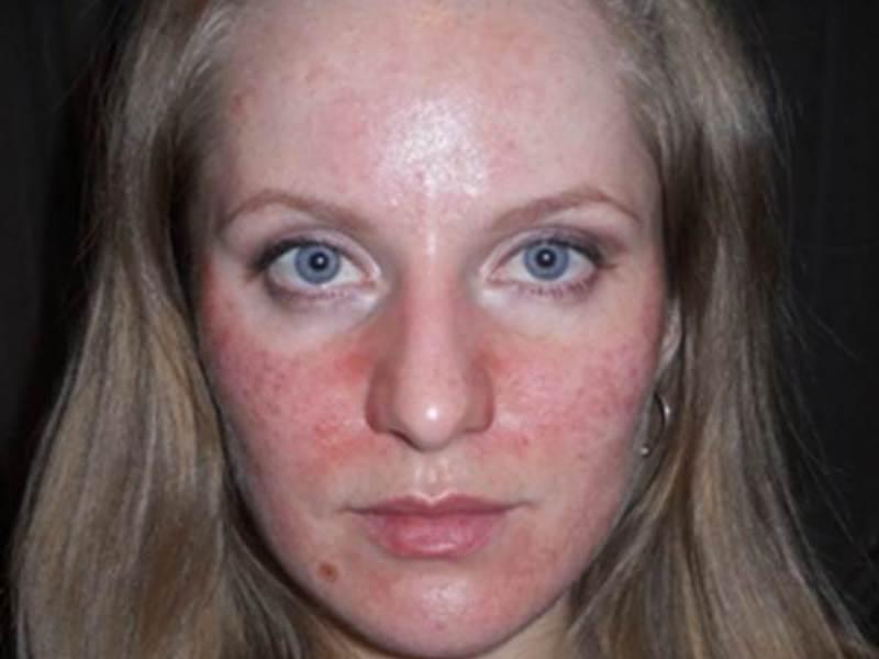 Как убрать шелушение на лице быстро в домашних условиях