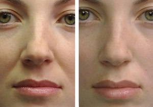 Результат мини-подтяжки лица