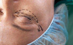 Как хирургическим путем убирают мешки под глазами
