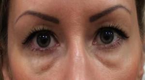Мешки под глазами могут появиться по множеству причин