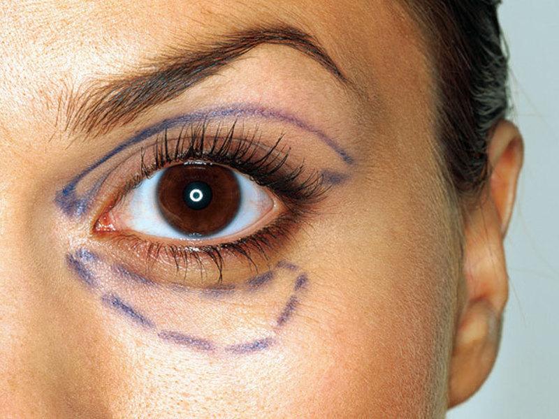 Как избавиться от грыжи под глазами