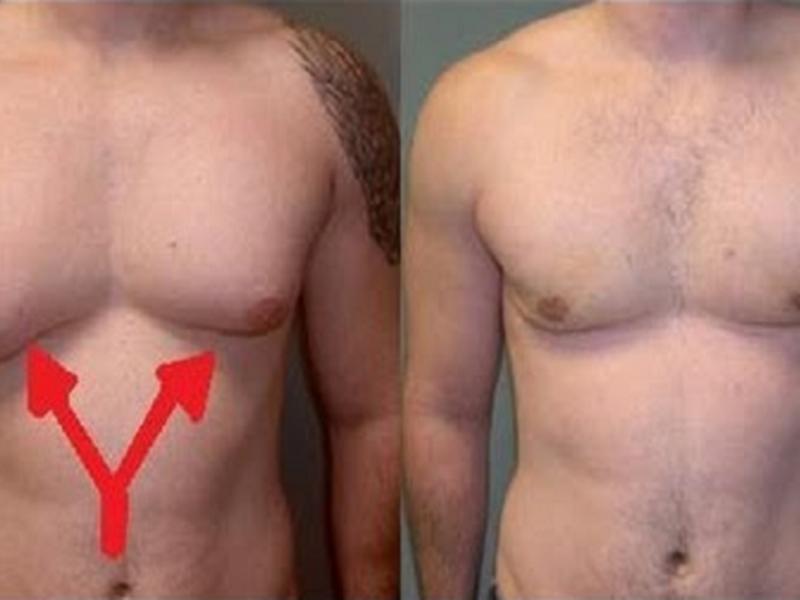 Как сделать грудь у мужчин