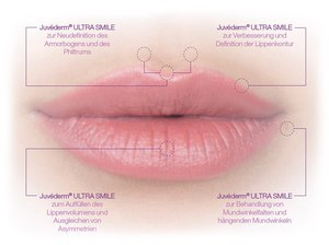 Филлер Ювидерм реакционер с целью губ: отпечаток да отзывы