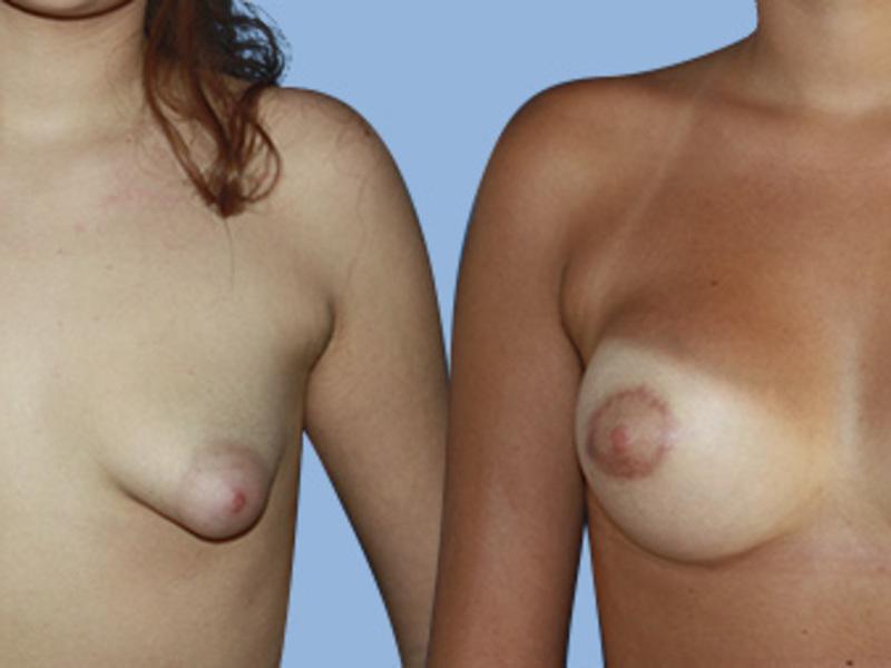 Траеют груди
