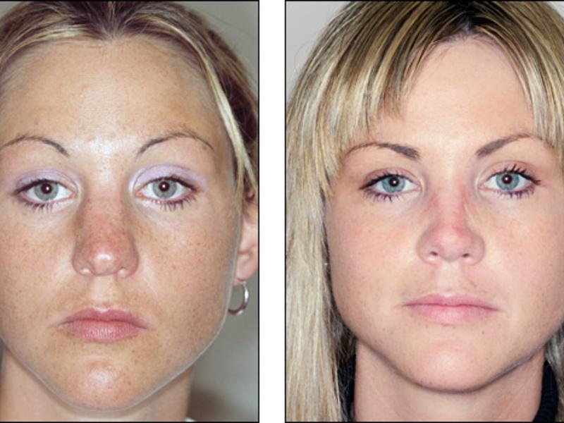 Как исправить дефект носа