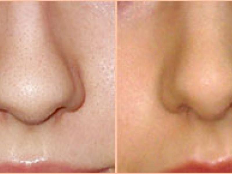 До и после ринопластики
