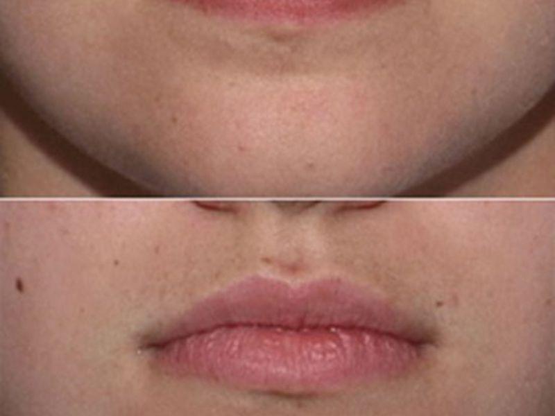 Можно ли делать лазерную эпиляцию на лице