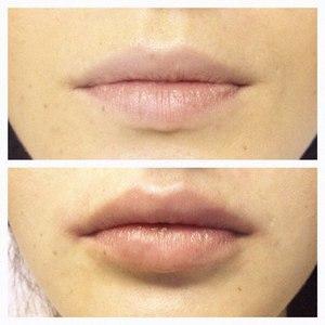 Image result for увеличение губ