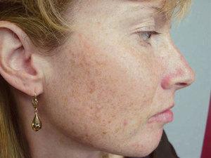 Показания для химического пилинга лица
