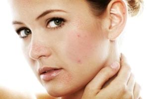 Возможные побочные эффекты от химического пилинга кожи лица