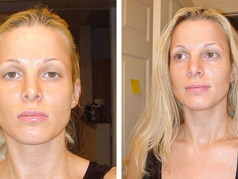 Нити АптосAptos  отзывы фото до и после осложнения и