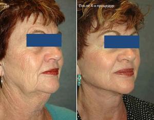 Плазмолифтинг лица: фото