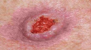 Плоскоклеточный рак показан на фото.
