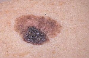 Меланома удаляется хирургическим путем.