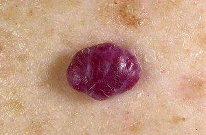 Классификация наростов на коже
