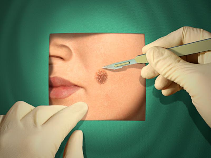 Удаление на лице злокачественных образований возможно под местным наркозом.