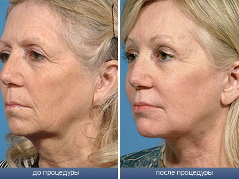 До и после плазмолифтинга лица